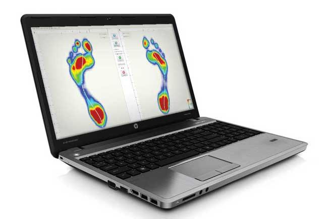 Footscan laptop
